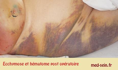 Hematome post opératoire