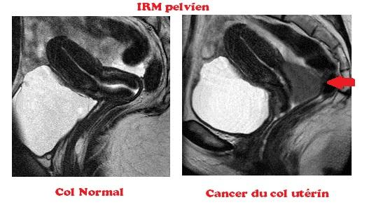 IRM cancer du col et col normal