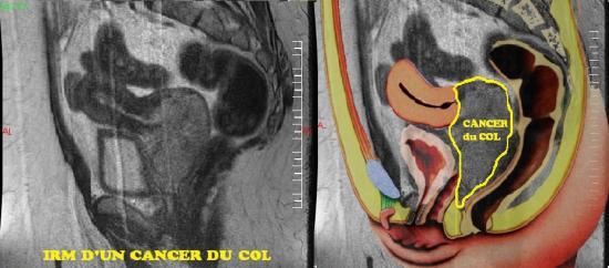IRM cancer du col de l'utérus