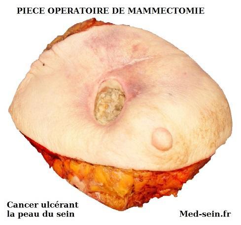 Piece operatoire mammectomie