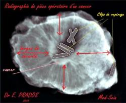 radiographie-piece-operatoire-1.jpg
