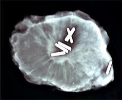 radiographie-piece-operatoire.jpg